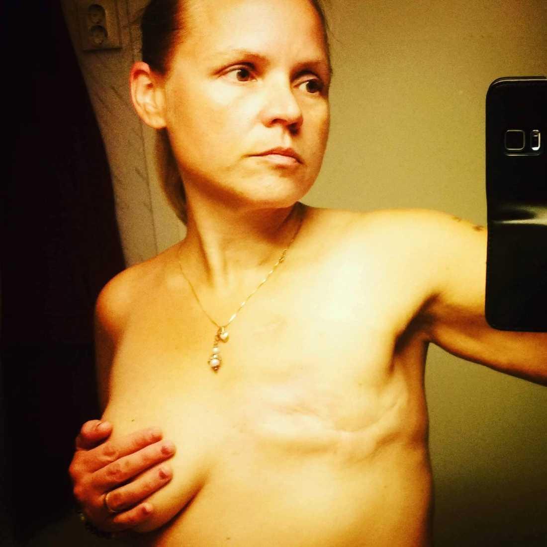 Charlotta fick ta bort ena bröstet.