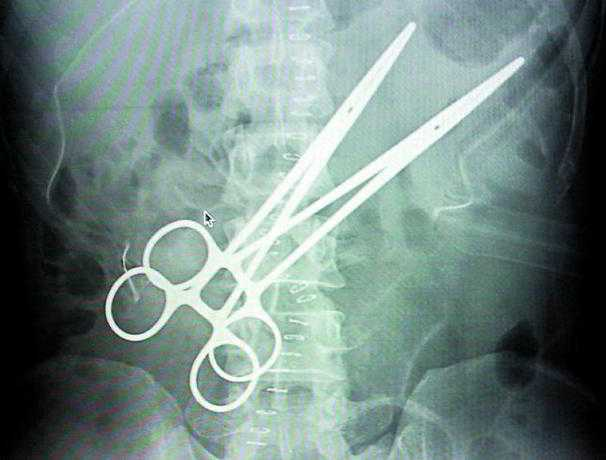 I mannens mage låg två 15 centimeter långa klämmor.