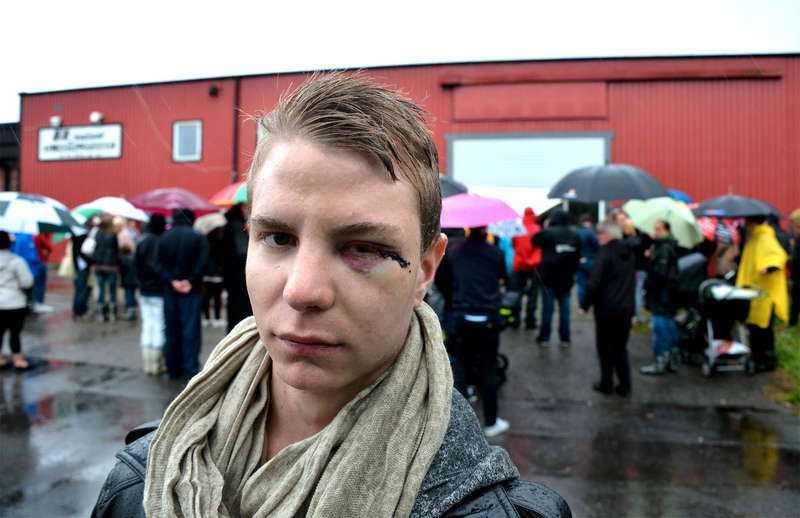 Vännen Alexander Nilsson blev också misshandlad i bråket.