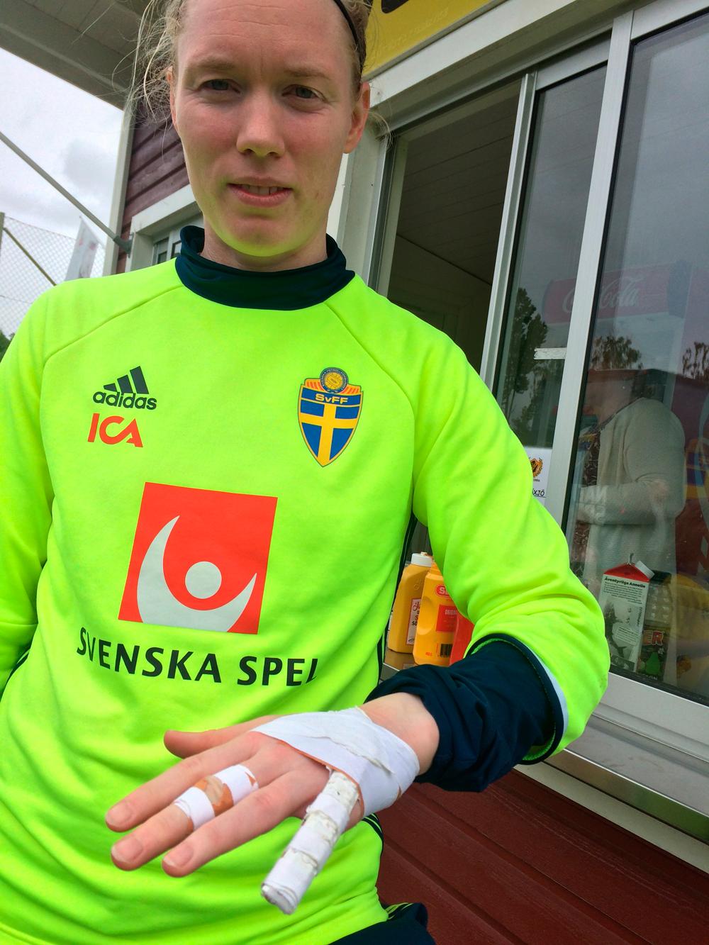 Hedvig Lindahls lindade lillfinger – och långfinger (efter en stukning).