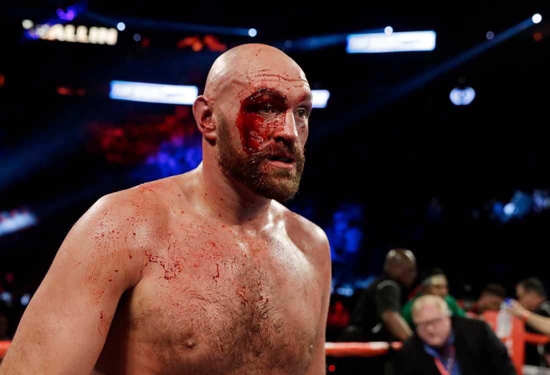 Tyson Furys sår i matchen mot Otto Wallin.