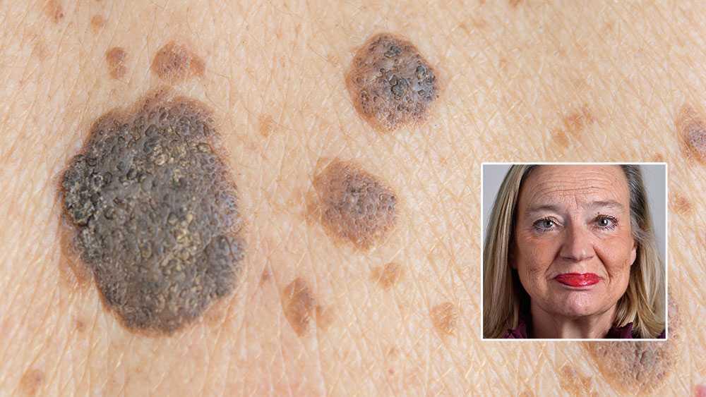 Flera hundra patienter med spridd hudcancer skulle, enligt en studie, ha varit i livet i dag om de fått behandling med checkpointhämmare, men tillgången på behandling är fortfarande mycket ojämlik, skriver Karin Rågsjö (V).