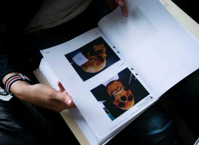 I förundersökningen syns bilder på de kranium som polisen har beslagtagit.