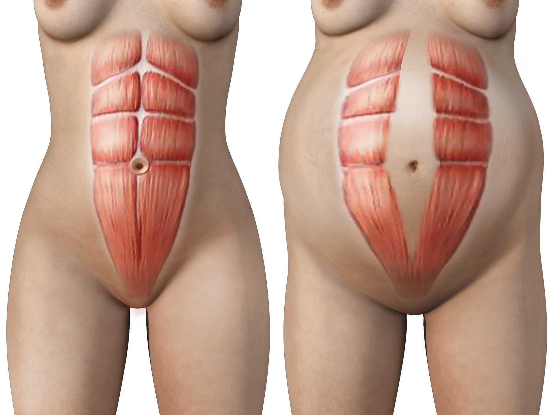 Musklernas naturliga läge (till vänster) och musklerna under diastas.