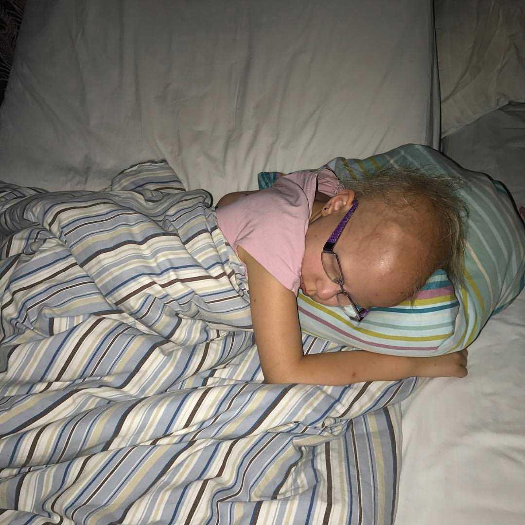 Tuva brukar bli trött under sina behandlingar.