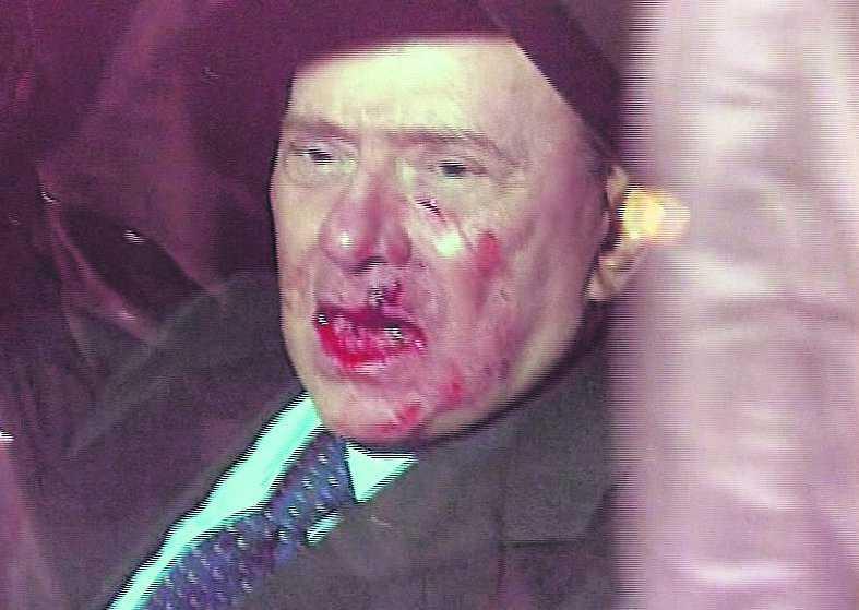 Silvio Berlusconi vårdas på sjukhus efter söndagens attack.