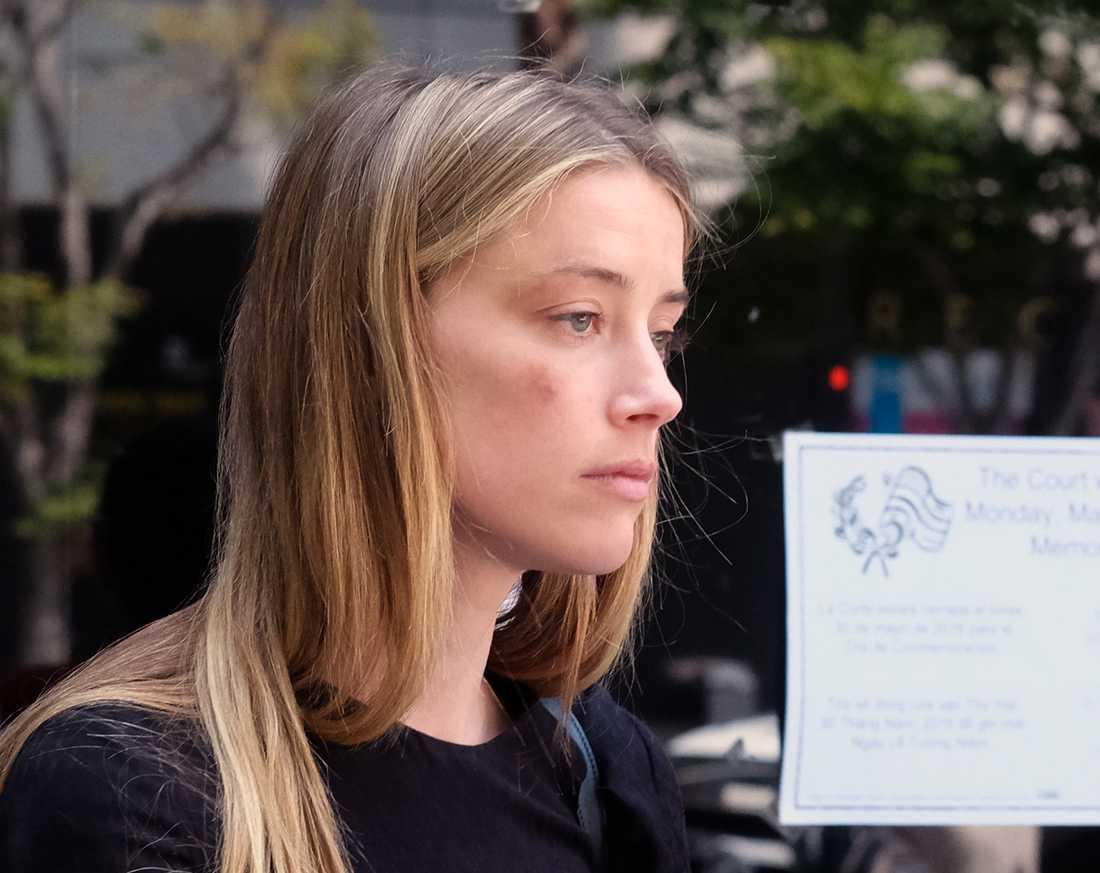 Amber Heard i domstol i Los Angeles, där hon visade upp skador i sitt ansikte som hon säger att Johnny Depp åsamkat henne.