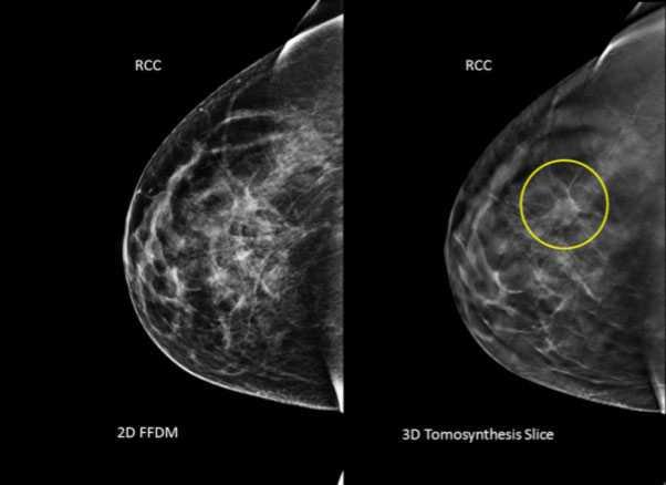 Bröstcancer är vanligaste cancern bland kvinnor i Sverige.
