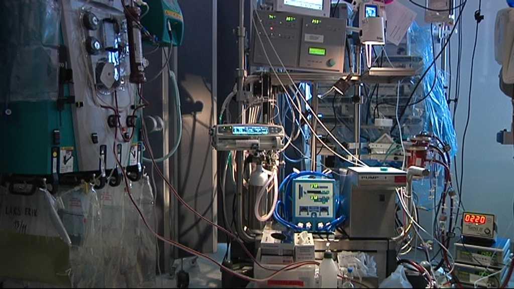 Två personer vårdas i Ecmo som är en konstgjord lunga som syresätter blodet utanför kroppen. Arkivbild.
