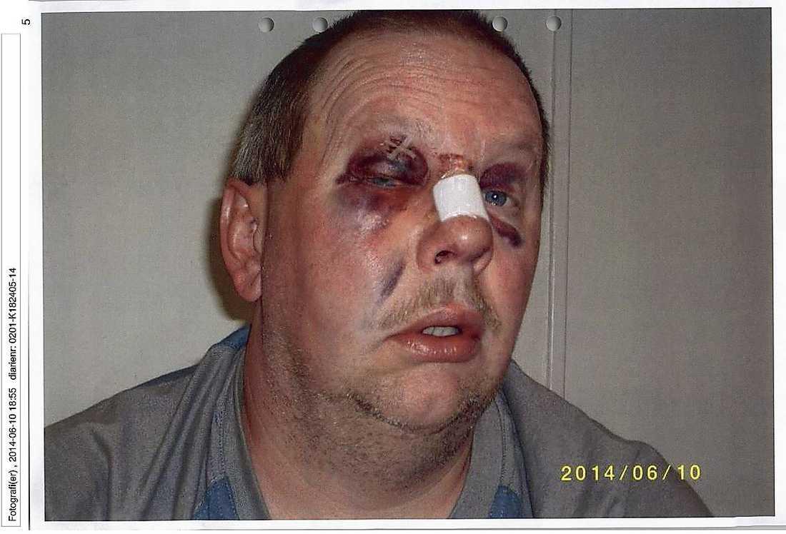 Anders Eklund var rejält blåsalagen efter misshandeln och han fick sys på näsan.