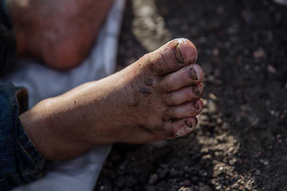 Adnan Alhara får sina fötter omplåstrade av volontärer. Hans fötter är såriga efter många dagar till fots.
