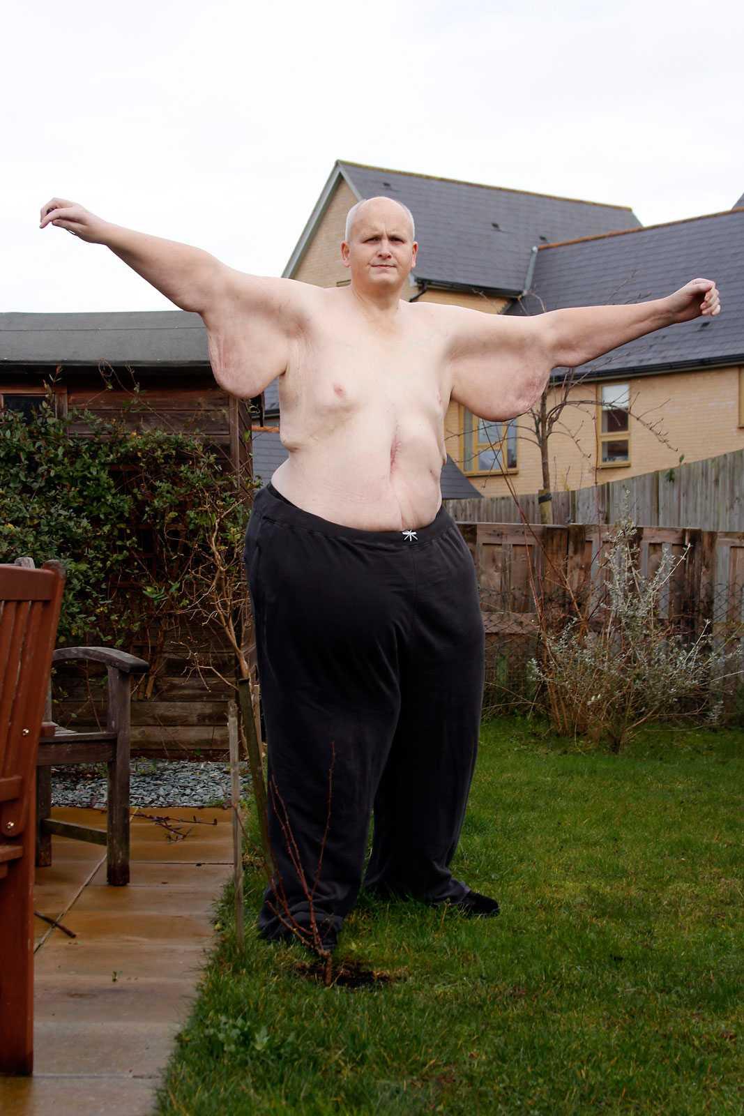 Nu har han gått ned 292 kilo.