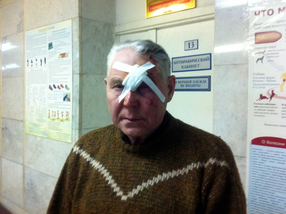 """En man som kallar sig """"Viktor"""" har precis behandlats för sina skador efter meteoritnedslaget i Ryssland."""