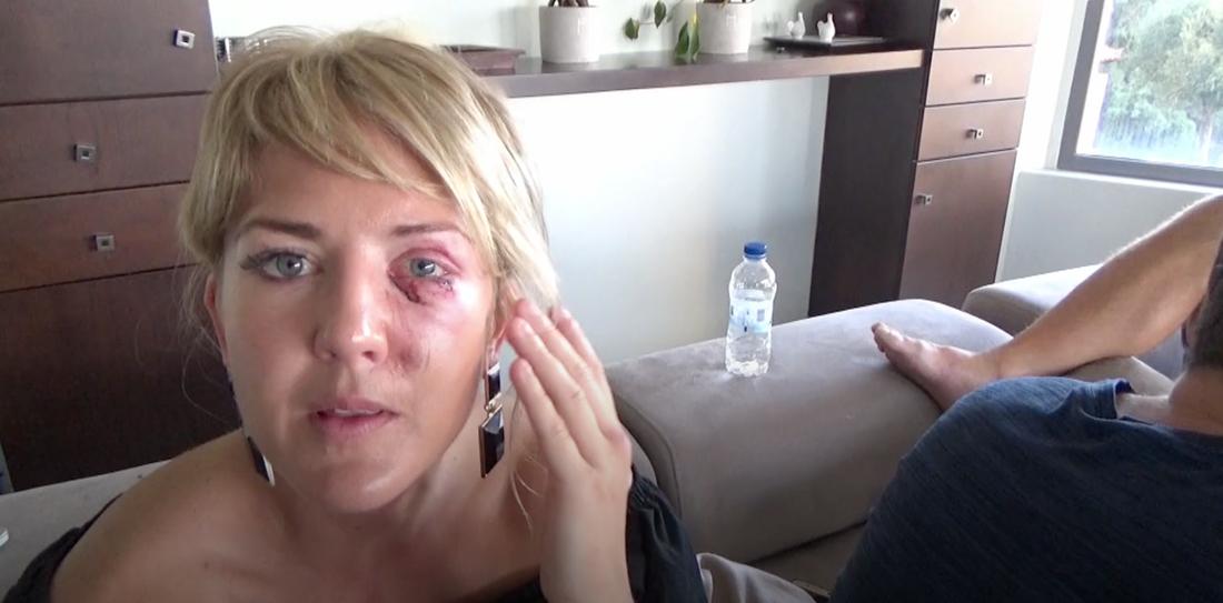 """Klara Svensson skadades rejält i kvällens avsnitt av """"Superstars""""."""