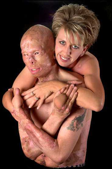 brännskadades i bilolycka Polisen Jason Schechterle poserar med hustrun Suzie. Han fick fjärde gradens brännskador i en olycka och fanns sedan på en lista över USA:s fulaste.