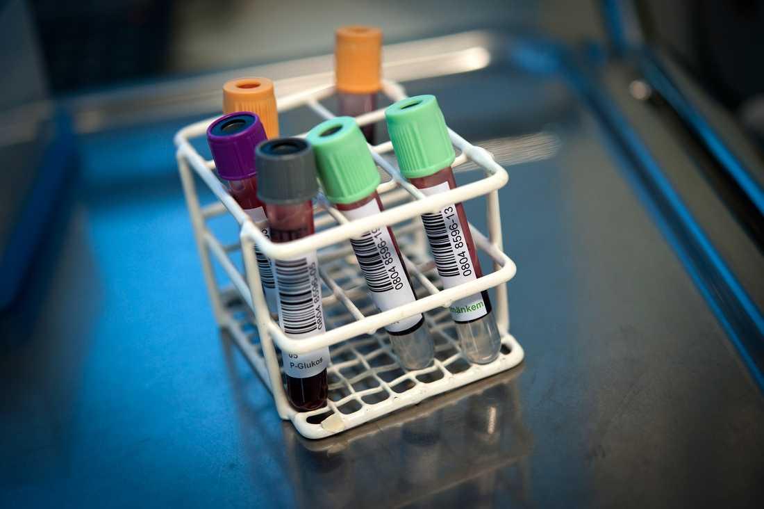 PSA-prov i form av ett blodprov för att upptäcka prostatacancer. I Skåne föreslås nu införandet av testning för prostatacancer skjutas upp. Arkivbild.