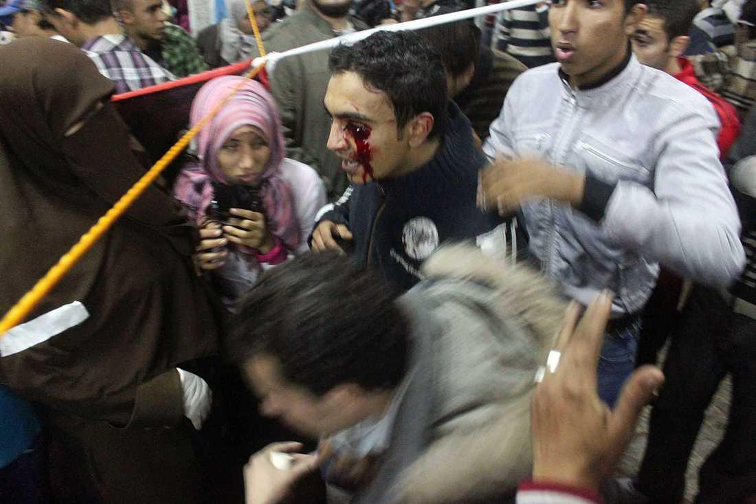 En ung man har skjutits i ögat av egyptisk polis.
