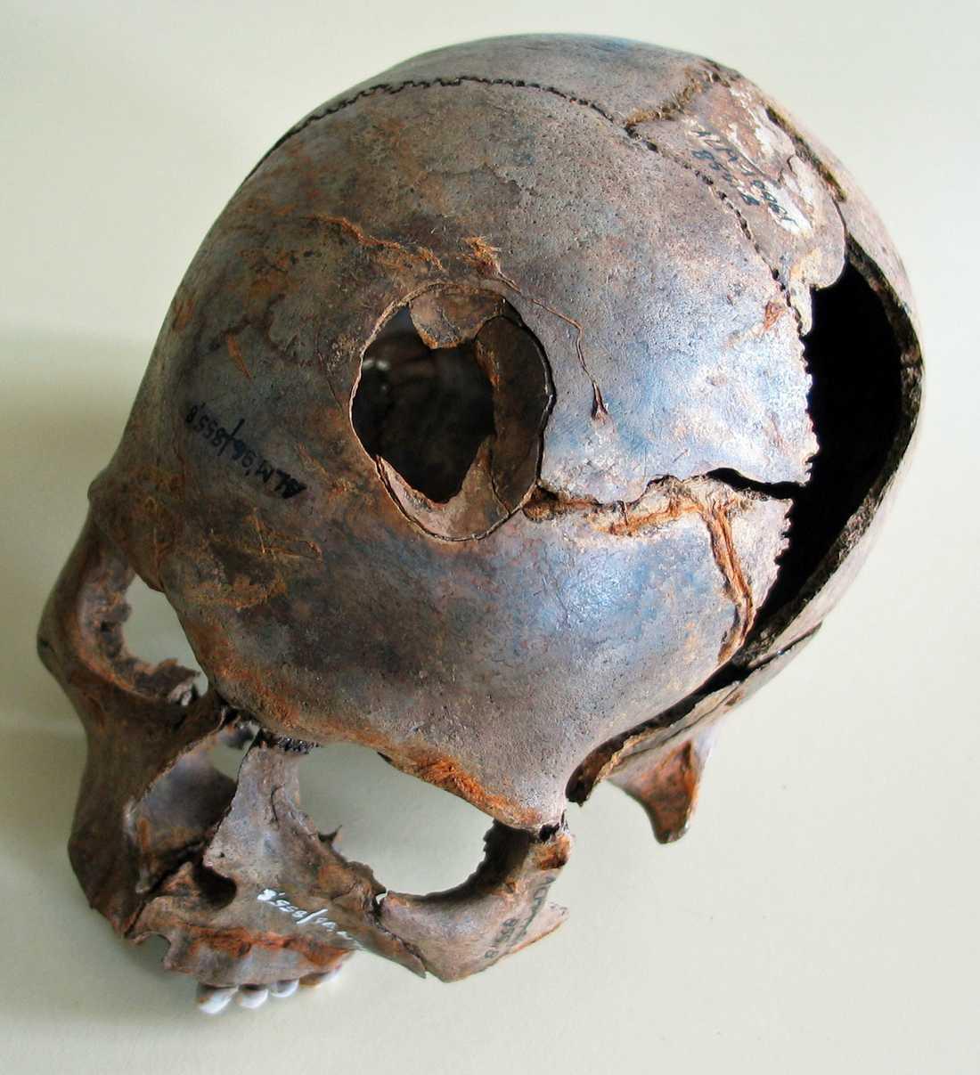 Utöver pilar och spjut användes också trubbigt våld, som denna skalle visar där någon fått skallbenet krossat, kanske av en klubba. Rester från minst 130 människor, alla unga män, har hittills hittats på platsen.