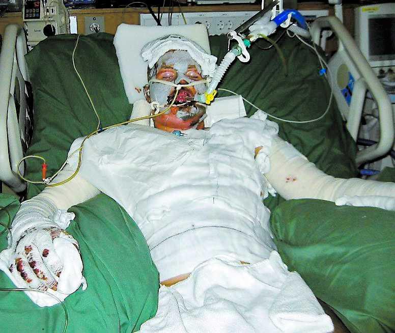 SVÄVADE MELLAN LIV OCH DÖD Tobias Eriksson hölls nedsövd i en vecka på sjukhus efter olyckan.