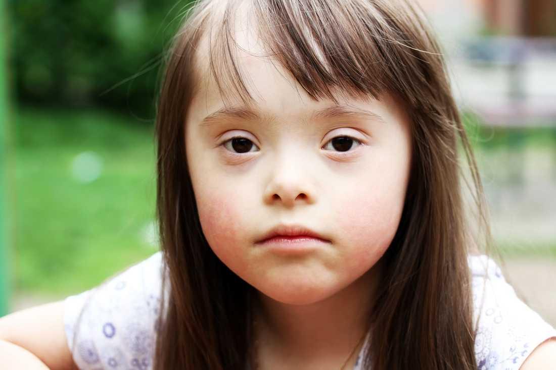 Är det möjligt för Kim, Maria, Samuel och Shirin, barn som råkar ha fötts med en extra kromosom 21, att leva, arbeta och fullt ut delta i framtidens samhälle? frågar debattören.