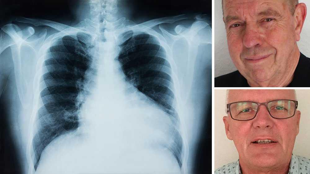 En uppdatering av den nuvarande nationella cancerstrategin krävs och här måste regeringen agera. Vi kräver att cancerstrategin uppdateras och att screening och behandling av lungcancer prioriteras så att fler lungcancerfall kan upptäckas och behandlas tidigare, skriver Leif Carlson och Tommy Björk.