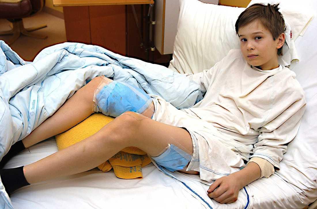 """""""JAG MÅR GANSKA BRA"""" Olle Frisk, 12, vårdas på sjukhuset i Östersund efter björnattacken i skidbacken. Han har två stora bandage på låren. """"Jag mår ganska bra. Har fått alvedon så smärtan håller sig borta"""", säger Olle."""