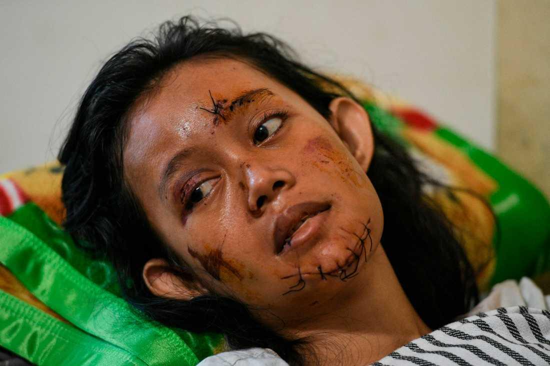 En kvinna som skadats i ansiktet återhämtar sig på sjukhus i Kalianda, Indonesien.