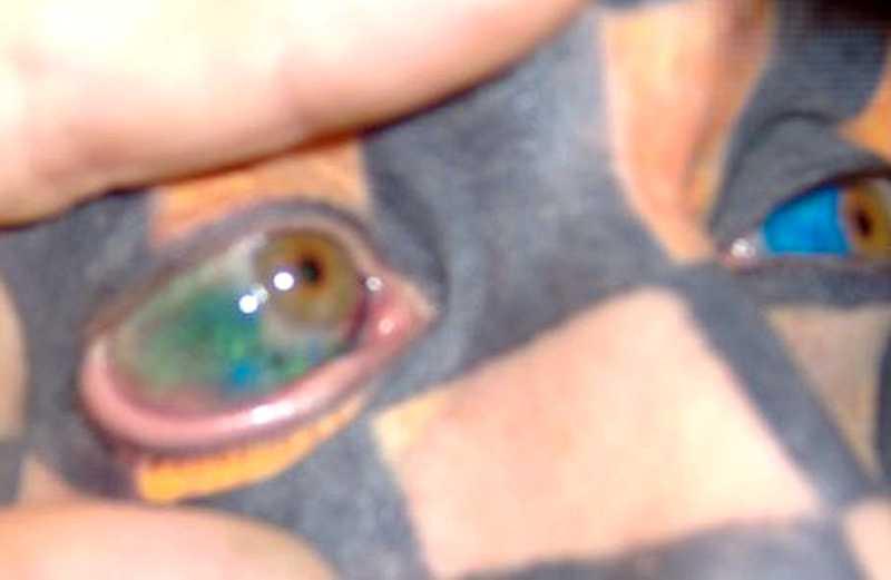 Amerikanen och tatueringsentusiasten Matt Gone har tatuerat ögonen gröna och blå.