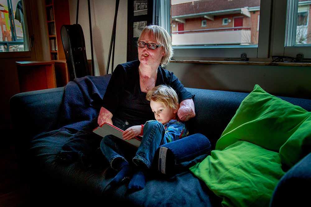 """En mördarbakterie höll på att kosta Christina Petterssons liv. Läkarna fick amputera både armar och ben och en bit av hennes näsa. Hon har blivit stark efter händelsen. """"Det är konstigt men jag tycker nästan mer om mig själv. Stör mig inte på små saker längre"""", säger hon."""