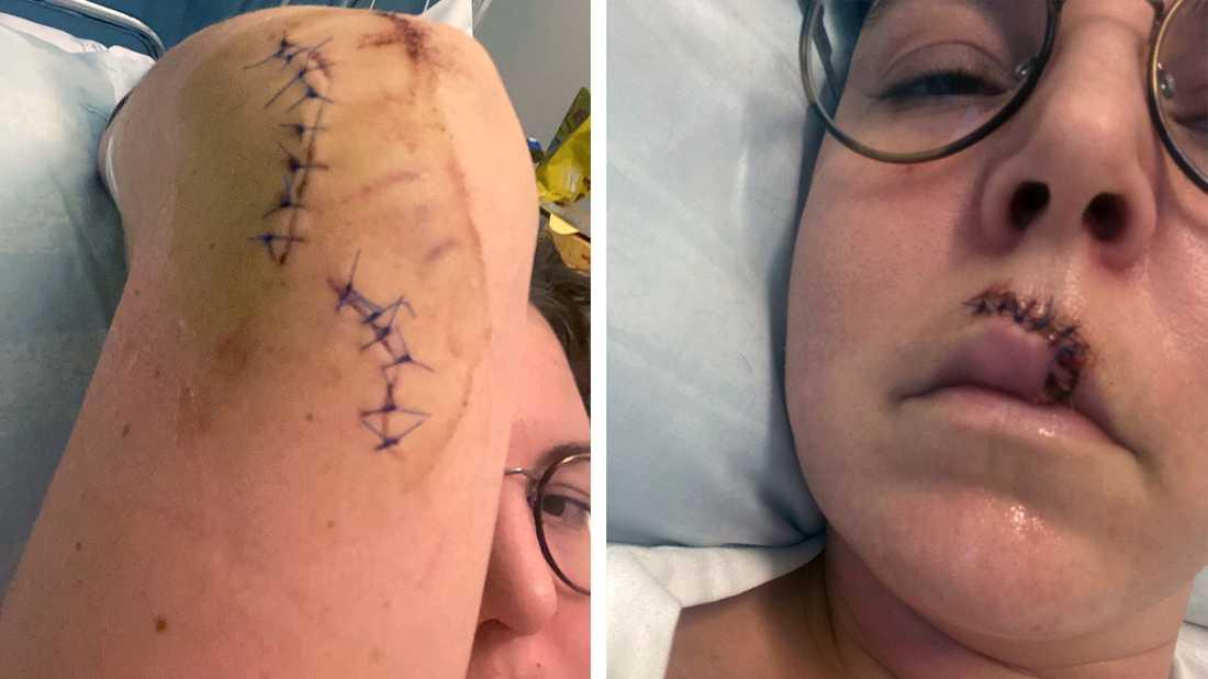 Caroline blev svårt skadad och bland annat knivskuren i ansikte och armbågen. Hon lider fortfarande av sviterna efter attacken men tränar regelbundet och blir allt starkare.