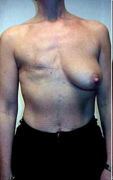 piercing i bröstet
