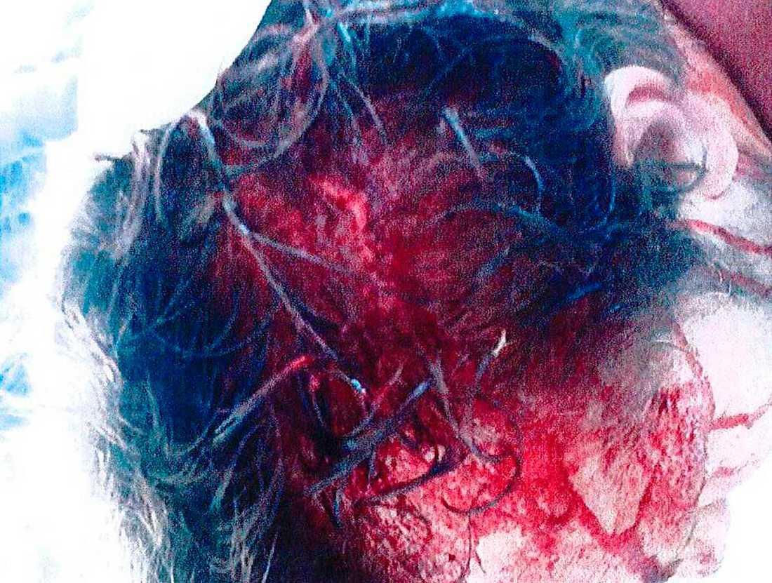 """SLOGS BLODIG I HUVUDET Den 22 augusti misshandlades Hagamannen, Niklas Lindgren, med en golfklubba, knytnävsslag och sparkar i huvudet. """"Perioden efter mådde jag så dåligt. Den här händelsen följer med mig varje dag"""", säger han i rättegången mot de tre män som misstänks för överfallet."""