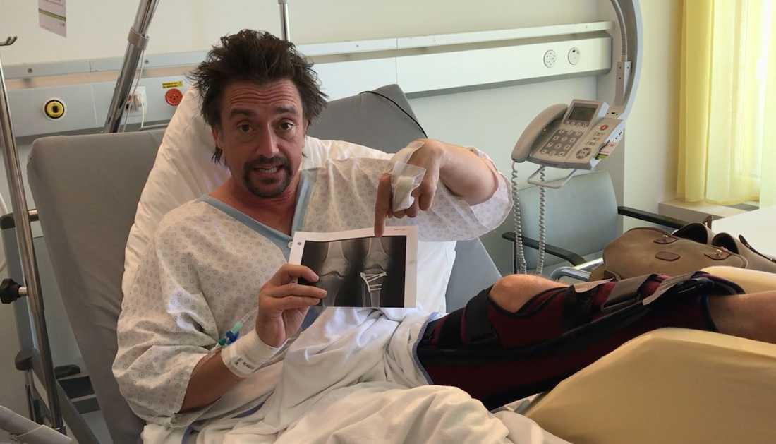 Richard Hammond har spelat in en video från sjukhuset efter våldsamma olyckan.