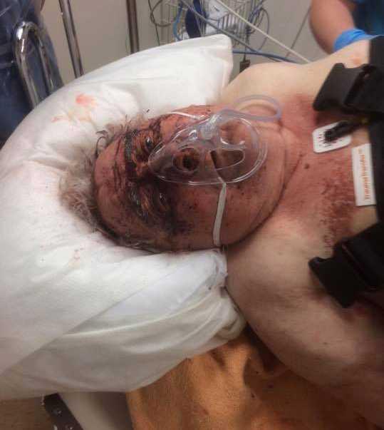 Ivar, 83, blev grovt misshandlad i sitt hem.