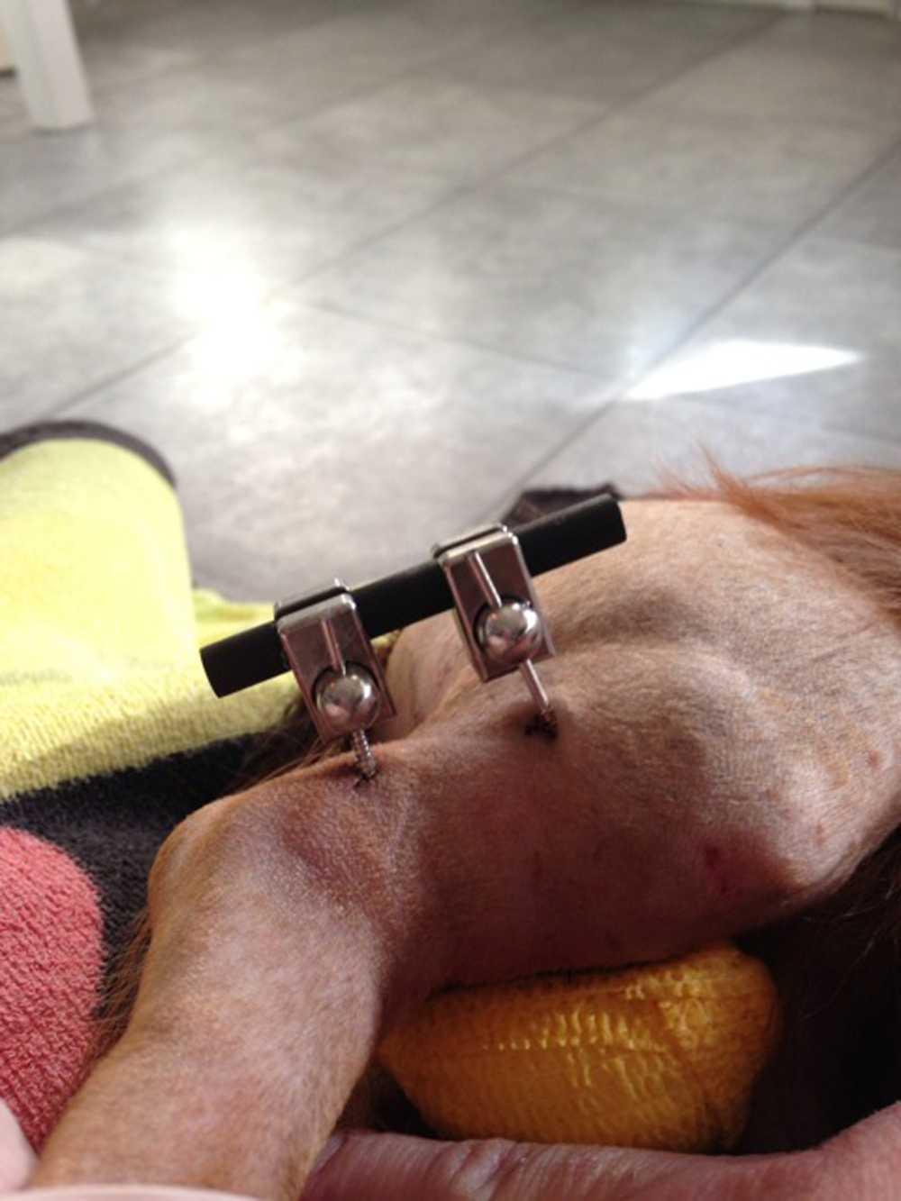 Efter operationen väntar Qasanova på att ny benmassa ska bildas. Under tiden måste Qasanova ha en stålställning som fixerar benet.