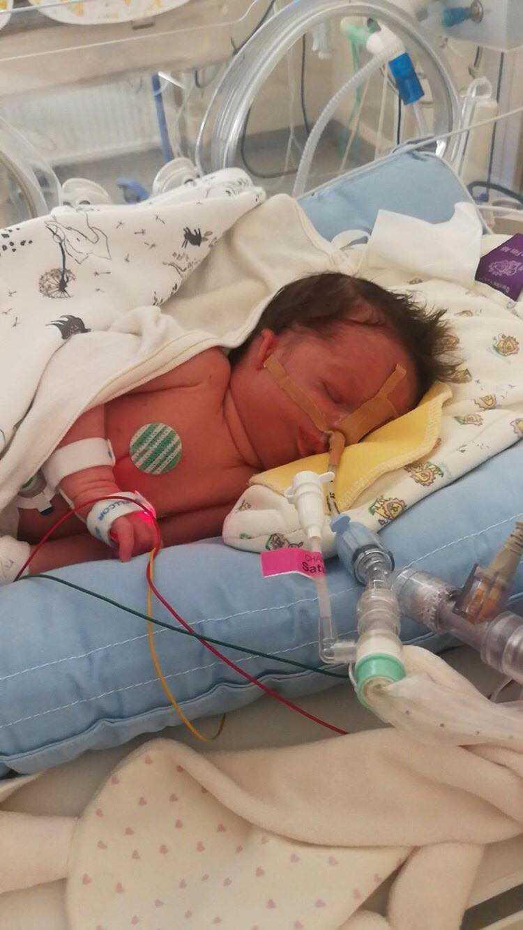 Elsa föddes med det sällsynta syndromet Treacher Collins.