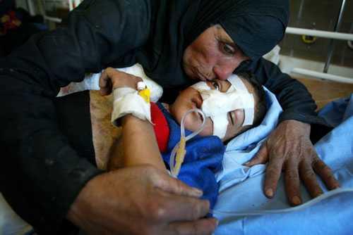 Kriget i Irak. Nezher Hassan Tallab, 10 år, skadades av en amerikansk klusterbomb när han lekte på sin gård i Bagdad.