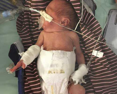 Jane och Marcus dotter Julia vägde 560 gram vid födseln.