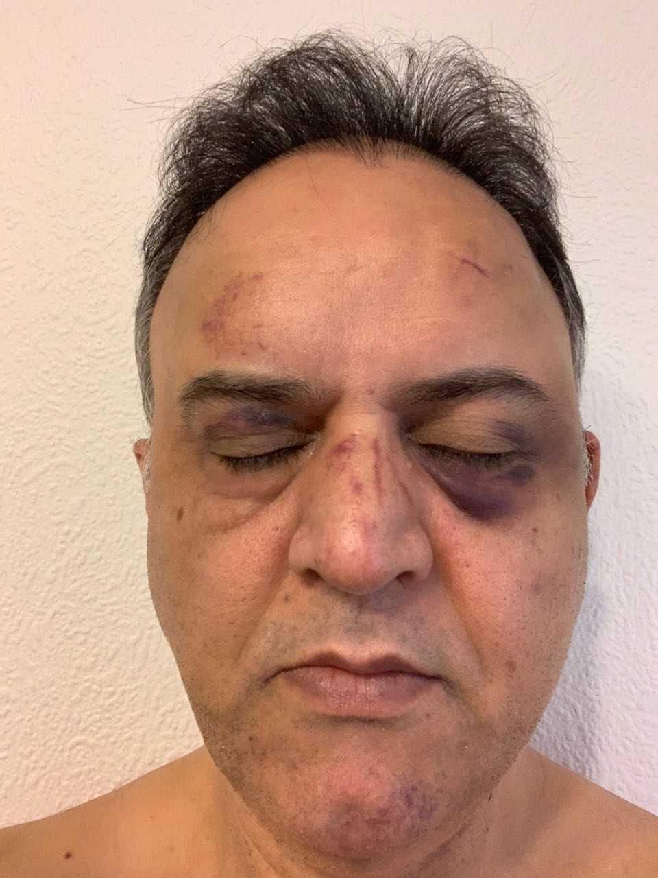Behnam Shiravand säger att han blev misshandlad av väktare på sjukhuset när han var där med sin mamma.