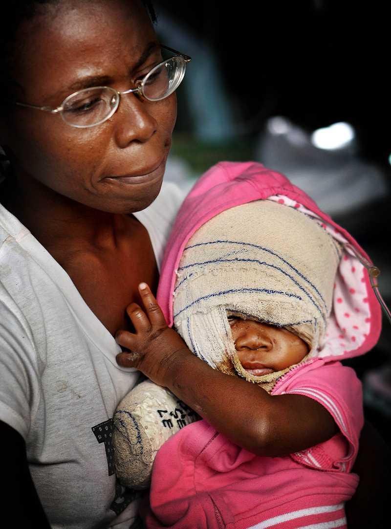 HITTADES AV SIN PAPPA Lilla Cacou hittades svårt skadad under rasmassorna av sin pappa – i samma stund som han hade gett upp hoppet. Cacou opererades i en och en halvtimme. Hennes högra arm amputerades. Men hon mår bättre.