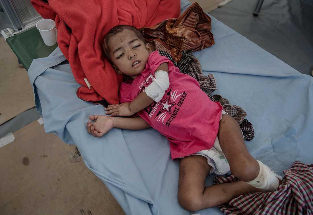 Den muslimska folkgruppen rohingya i den burmesiska delstaten Rakhine drivs sedan augusti 2017 på flykt under brutala former av den burmesiska militären. 4-åriga Asma har varit sjuk sedan flykten från Burma. OBS! Bilden är tagen i december 2017.