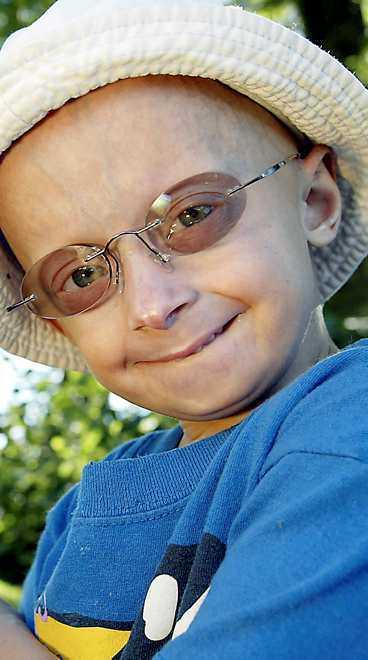 ETT BARN PÅ ÅTTA MILJONER DRABBAS Jesper, 6, har progeria - en sjukdom som gör att han åldras tio gånger snabbare än normalt.