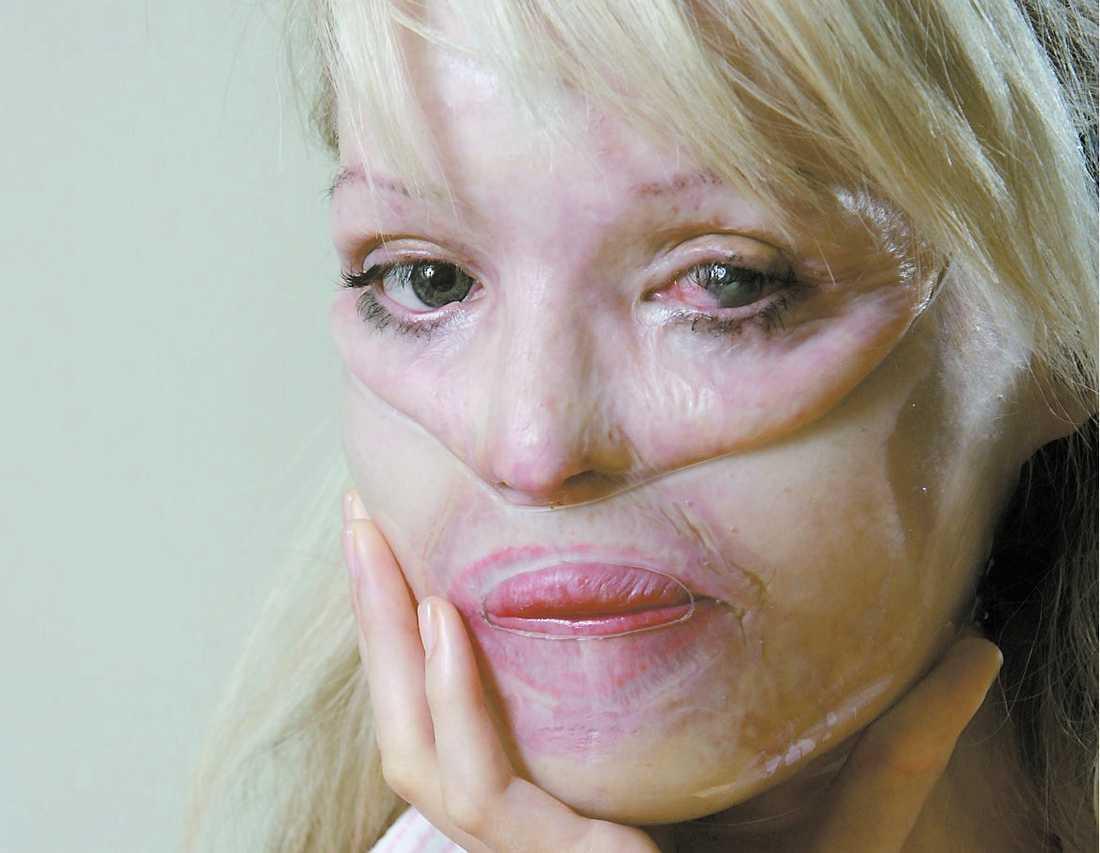 Sönderfrätt Katie Pipers ansikte har opererats ett 20-tal gånger men hon är långt i från återställd efter syra-attacken som hennes expojkvän låg bakom.