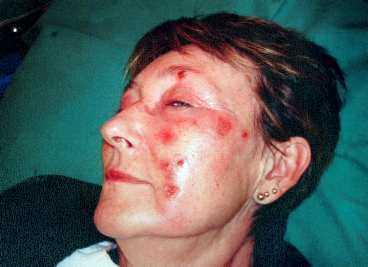 SÅREN FULLA MED VAR Christina Bengtsson köpte en av Sveriges populäraste antirynkkrämer. Resultat: hennes ansikte brändes sönder.
