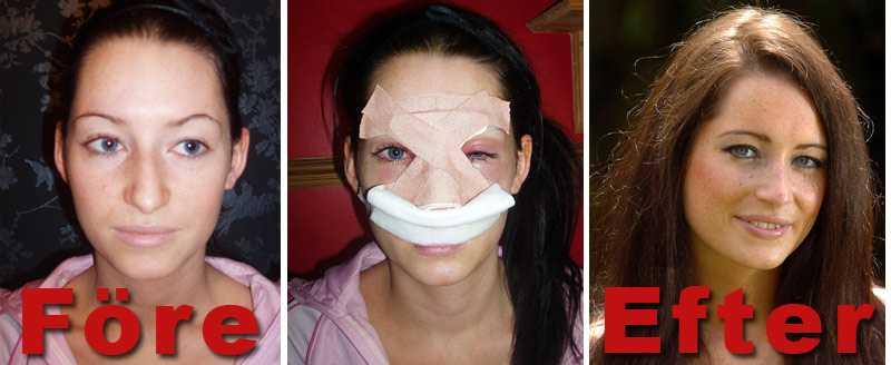 Lowri Ryrland, 21, blev i ett inlägg på Facebook kritiserad för sin näsa. Två veckor senare gick hon till plastikkirurgen för att få den ommodellerad.