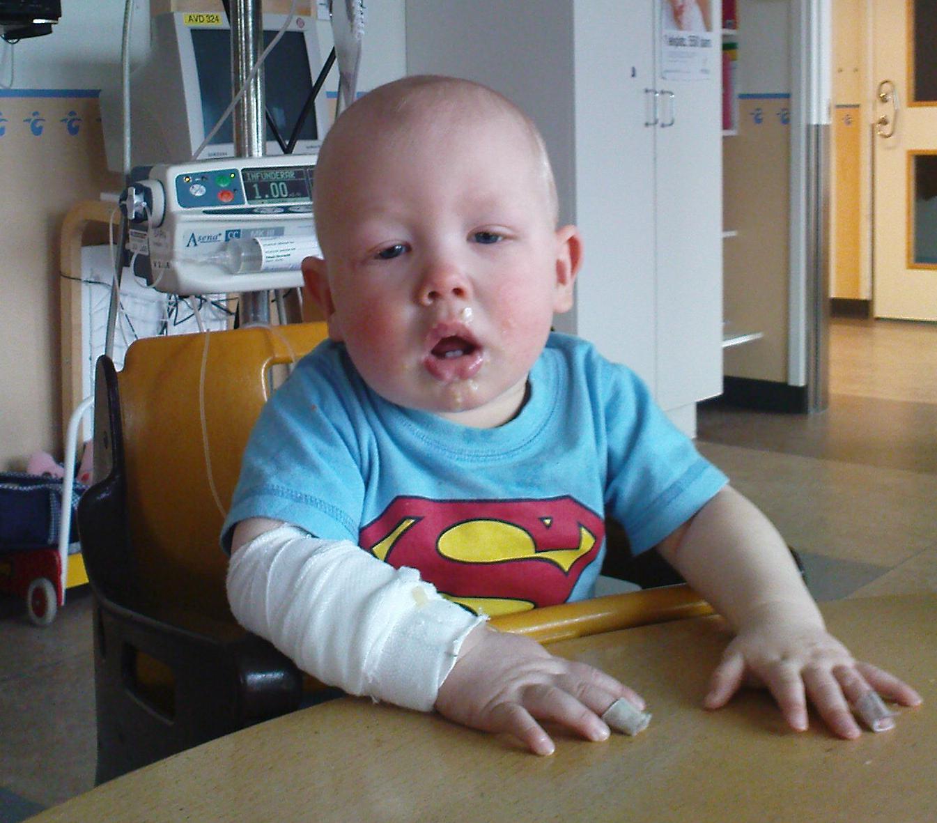 Sigge fick diabetes när han var nio månader.