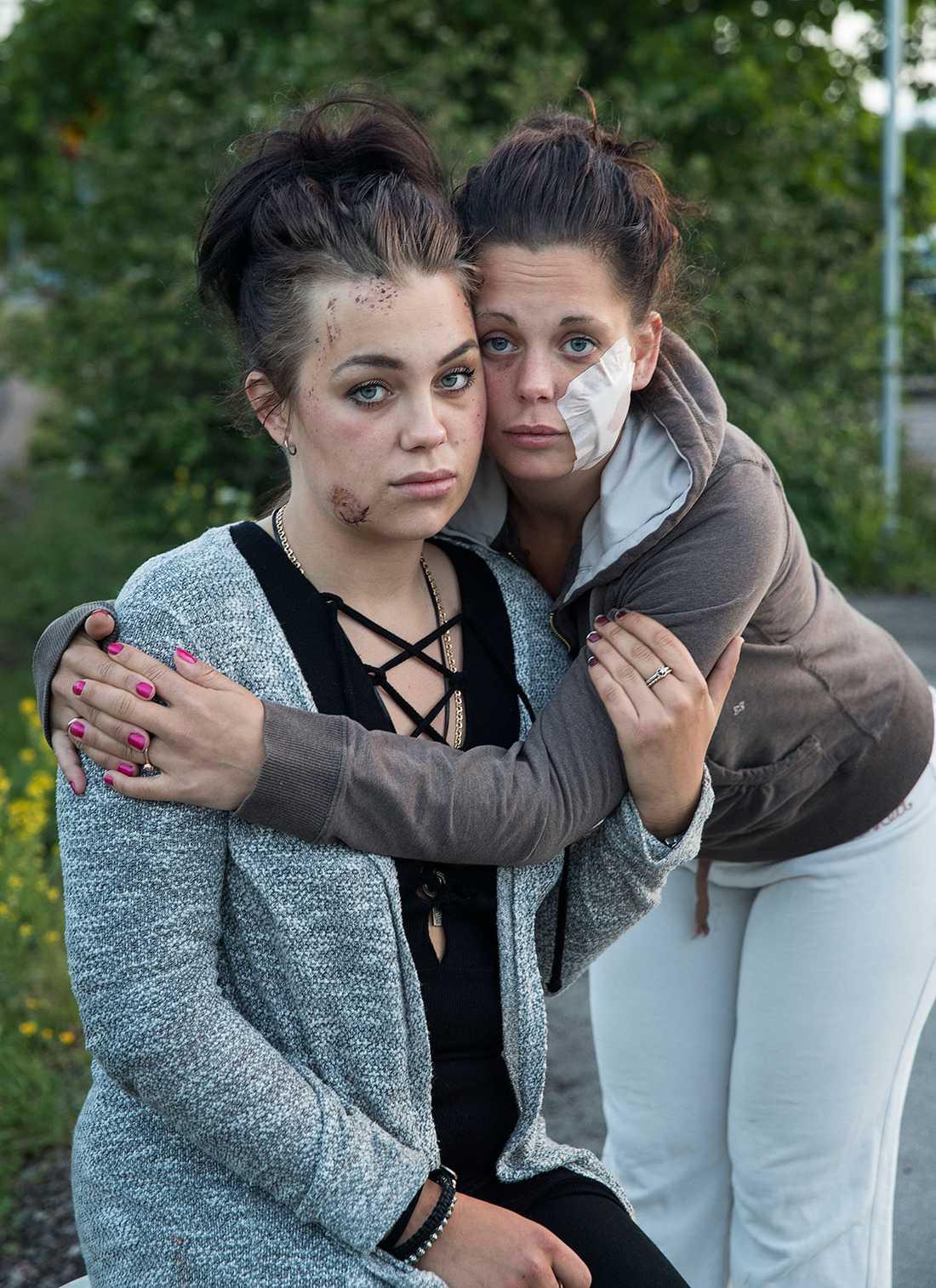 Josefine och Danielle Siljebäck (plåster), som fått ansiktena delvis bortbitna.