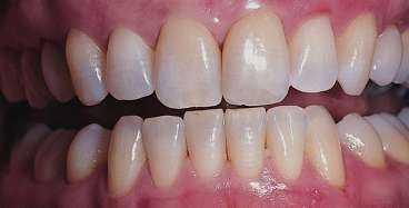 Blekning hos tandläkaren - före.