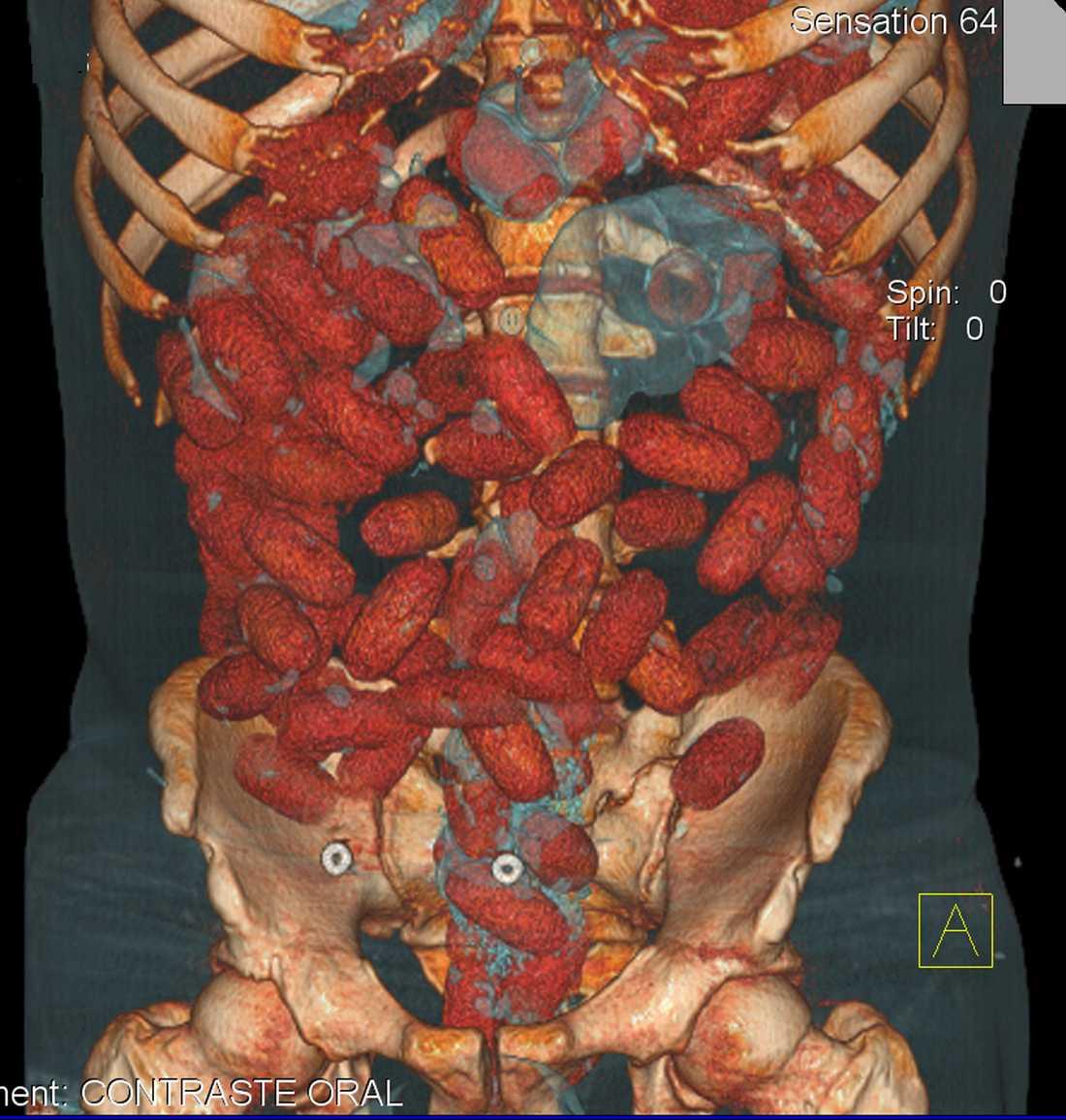 Ett kilo knark Kontraströntgen visar att 20-åringen hade svalt cirka ett kilo kokain.