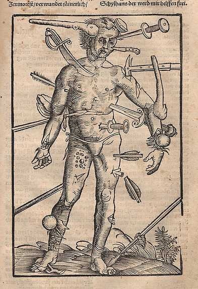 "Ur Hans von Gersdorffs ""Fälthandbok om sårade"" (1517)."